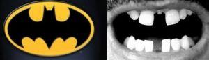 The Splintering_chomp_bites_one_off_superman_sidekick_interview_batman_teeth